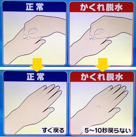 熱中症初期症状チェック法1.JPG